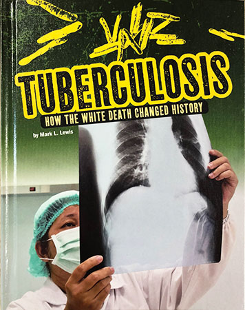 Buy Infected: Tuberculosis from raintreeaust