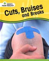 How's Your Health: Cuts, Bruises and Breaks